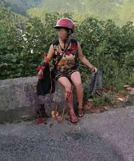 农妇遭五步蛇空袭 怒撕毒蛇为儿加个菜
